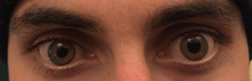 eyes in Horner's syndrome case study
