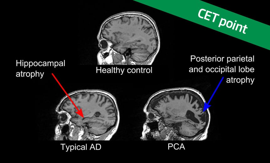 Posterior-cortical-atrophy-CET