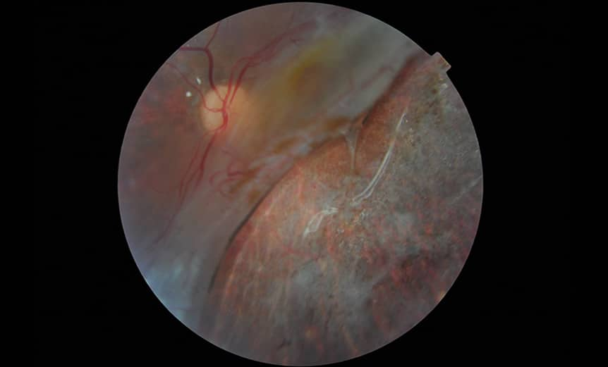 Retinal-detachment_Manminder-Matharu