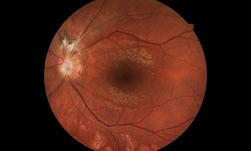 Clinical photography – Ophthalmic parasitosis