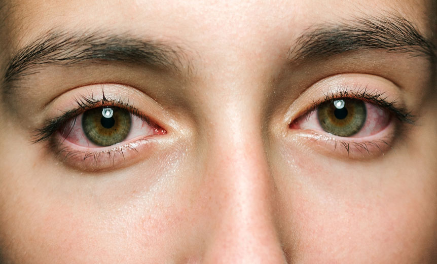red watery eyes - woman - dark eyelashes and eyebrows
