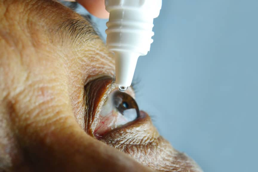 older male brown eye drops