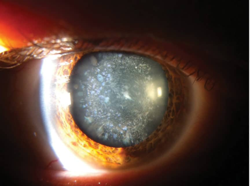 Cerulean cataract digital retinal photo provided by Chris Boyle, Specsavers Auckland