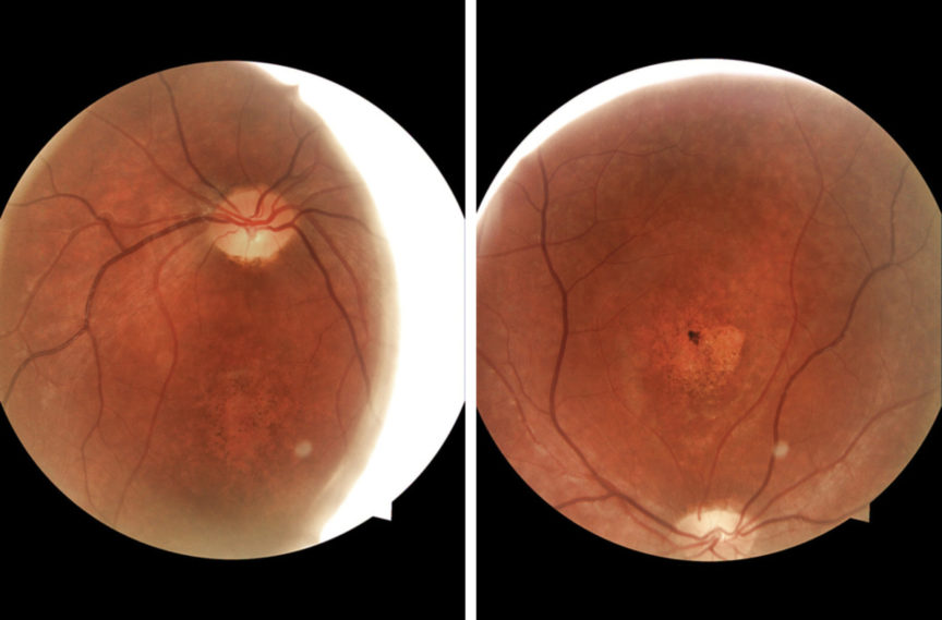 Stargadt disease digital retinal images by Ice Liu, Specsavers optometrist, New Zealand