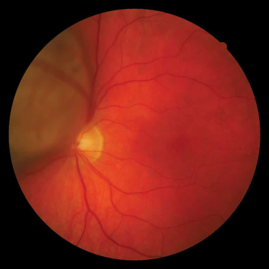 Choroidal Melanoma digital retinal photo taken by Eibhlin McHugh, Specsavers